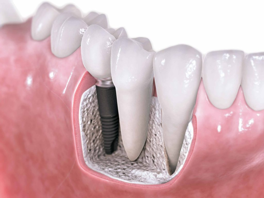 Implant dentaire : Un implant sur plusieurs dents ?