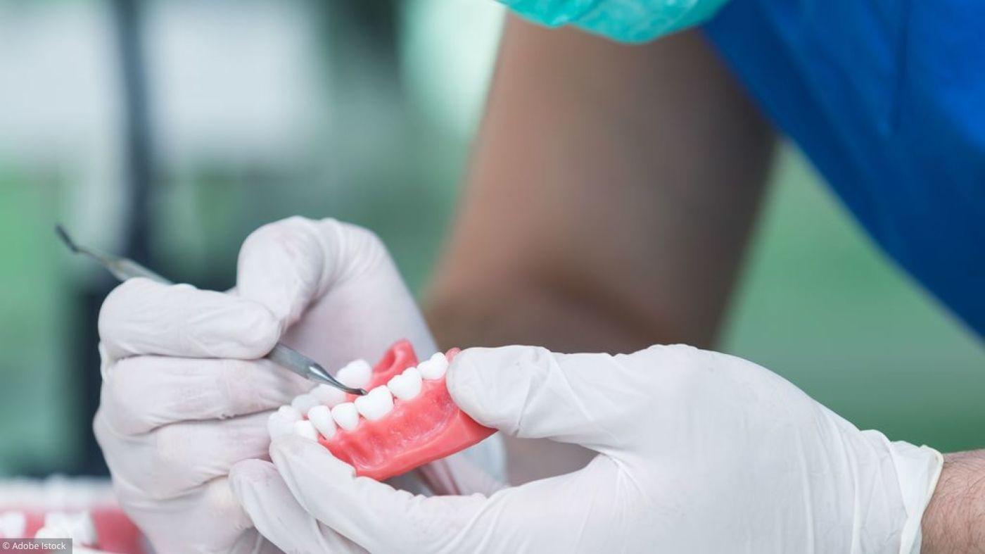 Implant dentaire : quelles sont les conditions pour se faire poser un ?